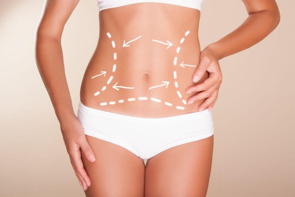 Lipoaspiração: entenda mais sobre a cirurgia